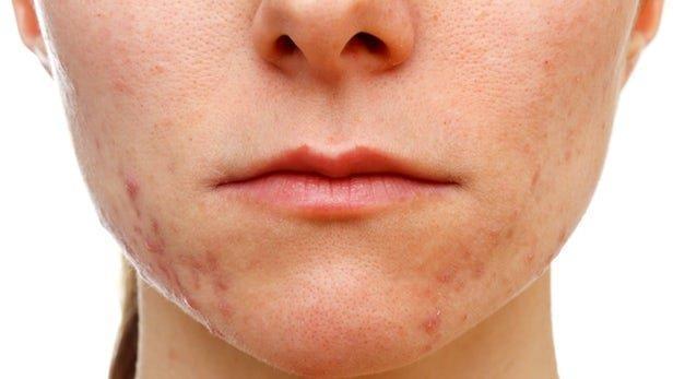 واکسن بیماری های پوستی فراوری می گردد